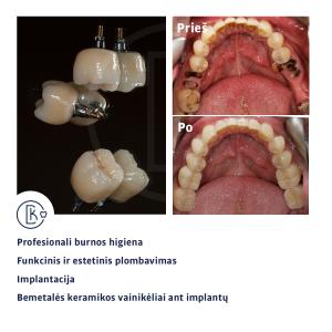 Sąkandžio aukščio pakėlimas kompozitu pagal pavaškavimą ir prarastų dantų atstatymas ant implantų