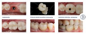 Prarasto danties atstatymas, išsaugant nepažeistus gretimus dantis