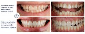 Ortodontinis gydymas, bemetalės keramikos laminatės