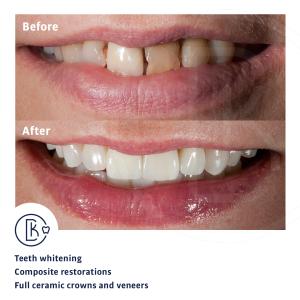 Smile reconstruction