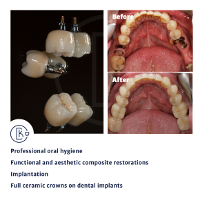 Dental implants and composite restorations