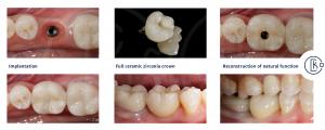 Minimally invasive lost tooth reconstruction