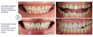 Orthodontic treatment and ceramic veneers